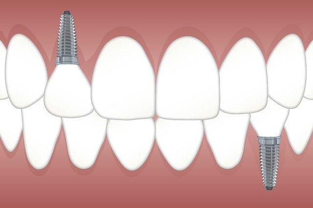 ukázka zubního implantátu
